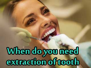 When do you need extraction of tooth
