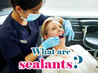 What are sealants?