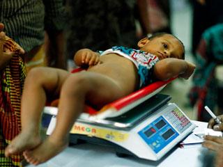 भारत में हर 2 मिनट में निमोनिया और डायरिया लेता है एक बच्चे की जान