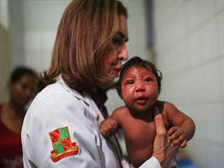 Zika virus may cause microcephaly even after birth