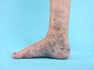 Why Surgery Does Not Work For Varicose Veins?