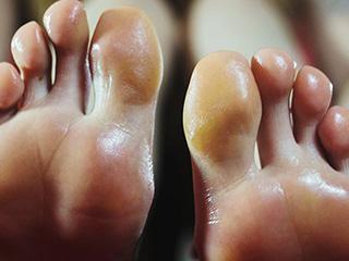 सीने नहीं पैरों में विक्स लगाने से जल्द ठीक होती है सर्दी? जानें सच