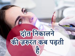 दांत निकालने की जरूरत कब पड़ती है