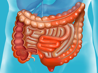 <strong>Stomach</strong> inflammation? It may lead to IBD