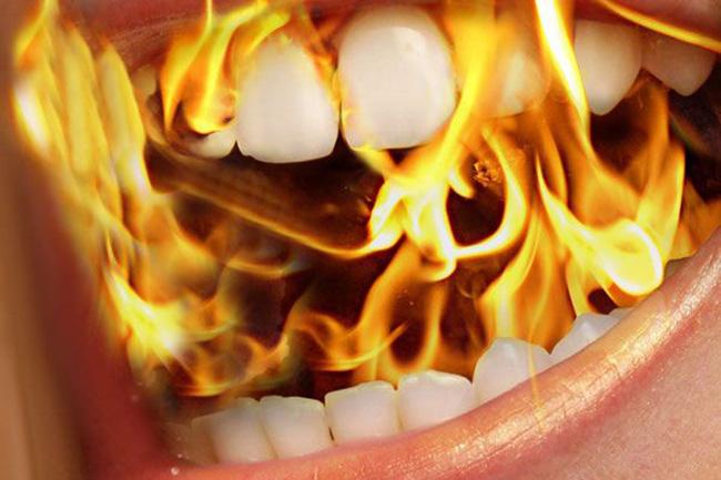 बर्निंग माउथ सिंड्रोम यानी बीएमएस (burning mouth syndrome)