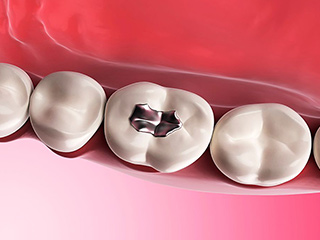 दांतों में भरे जाने वाले अमल्गम के हैं नुकसान, जानें कैसे