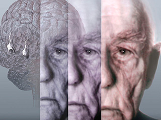 World Alzheimer's day : Why are women at greater risk?