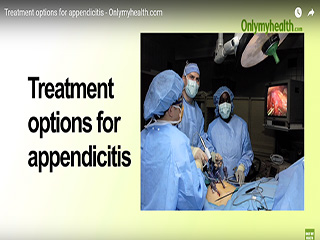Treatment options for appendicitis