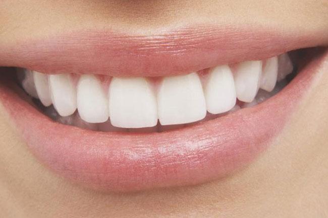 दांत चमकाए