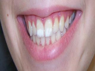 इन आसान टिप्स से पाएं दांतों के सफेद धब्बों से छुटकारा