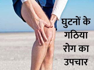 घुटनों के गठिया रोग का उपचार
