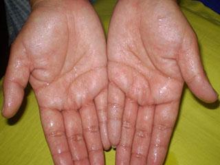 हाथों में पसीना आता है तो अपनाएं ये 5 उपाय