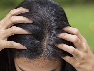 सफेद बालों को 1 हफ्ते में काला करता है आलू का छिलका!