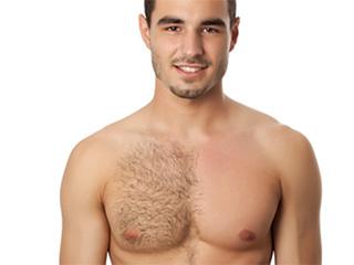 चिंताजनक है पुरूषों में स्तनों का उभरना, मगर इलाज संभव!