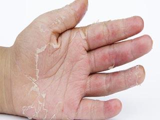सर्दियों की आम समस्या है एलर्जी, ऐसे करें बचाव