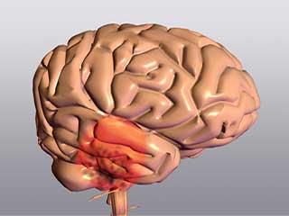 ब्रेन स्ट्रोक होने से पहले मस्तिष्क देता हैं ऐसे 5 संकेत