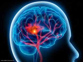 शोध में बड़ा खुलासा, इस तरह आवाज पहचानता है मानव मस्तिष्क