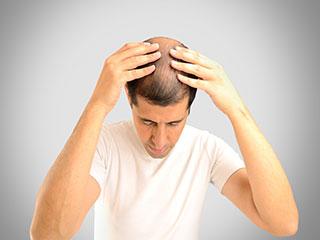 बाल झड़ रहे हैं, तो हो सकती हैं ये समस्याएं