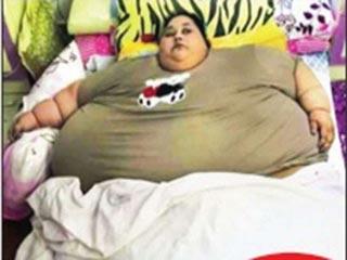 मुंबई आईं इमान को करना पड़ेगा 100 किलो वजन कम