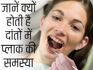 जानें क्यों होती है दांतों में प्लाक की समस्या