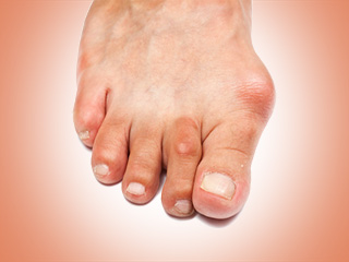 5 Effective ways to treat bunion pain