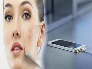 आपके बढ़ते मुंहासे की वजह है आपका स्मार्टफोन! जानें कैसे?