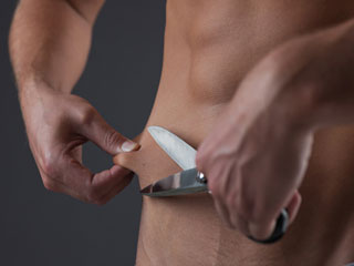Weight loss surgery, move over bariatric surgery; let's talk about endoscopy sleeve gastroplasty