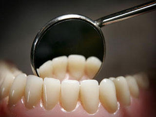 दांतों के सफेद धब्बों से हैं परेशान? इन टिप्स से पाएं निदान!