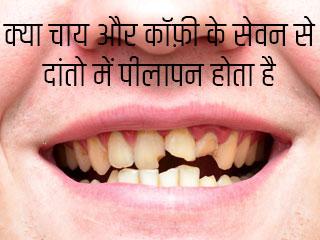 क्या चाय और कॉफ़ी के सेवन से दांतो में पीलापन होता है