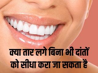 क्या तार लगे बिना भी दांतों को सीधा करा जा सकता है