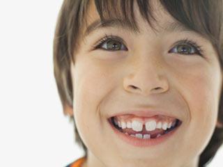 ब्रेसिस लगने के समय ये 1 घरेलू उपाय अपनाएं दांतों की कैविटीज को दूर भगाएं