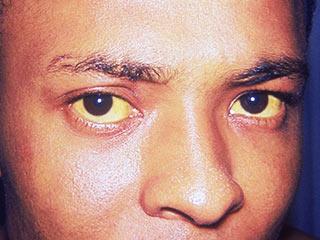 जानलेवा बीमारी है 'हेपेटाइटिस', 5 तरह से कर सकता है अटैक!