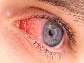 इन 5 घरेलू नुस्खों से कीजिए कंजंक्टीवाइटिस का इलाज
