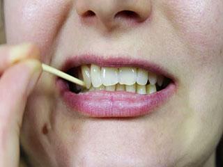 टूथपिक के इस्तेमाल से दांतों में लग सकती है ये बीमारी