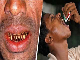 गुटखे से दांत हो गए हैं काले? तो अपनाएं ये 1 मिनट वाला नुस्खा