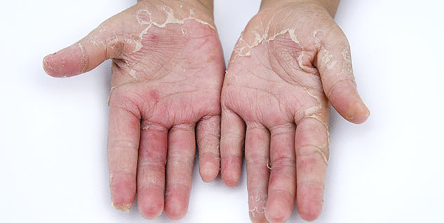 Home remedy to get rid of hand skin peeling
