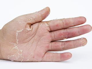 <strong>Home</strong> <strong>remedy</strong> to get rid of hand skin peeling