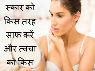 स्कार को किस तरह साफ करें और त्वचा को किस तरह जवां बनाएं