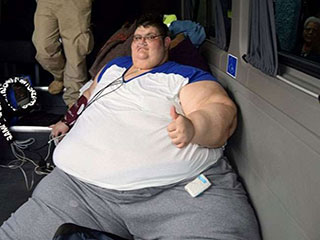 गैस्ट्रिक बाइपास सर्जरी के लिए तैयार विश्व के सबसे वजनी पुरुष