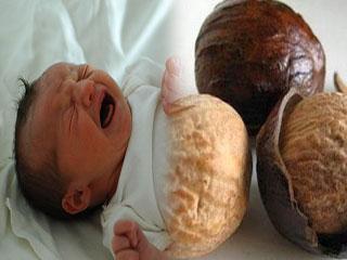 जायफल का कमाल, शिशु के दस्त का कर देगा काम तमाम
