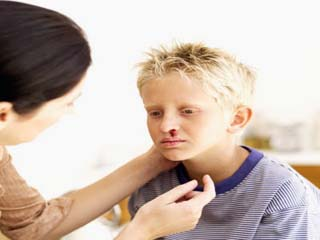बच्चे की नाक से खून निकलने पर घबराएं नहीं, करें ये काम