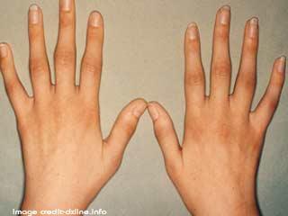 World Arthritis Day: इन लक्षणों से जानें गठिया है या कोई और रोग