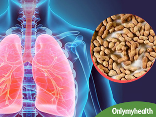 फेफड़े में कैंसर रोगी के लिए दवा से भी बढ़कर है मूंगफली, जानिए कैसे?