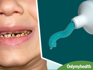 दांतों में लगे कीड़ों को तुरंत मार देगा घर में बना ये टूथपेस्ट