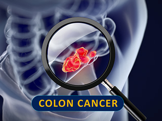Eating the right foods can help ease colon cancer symptoms