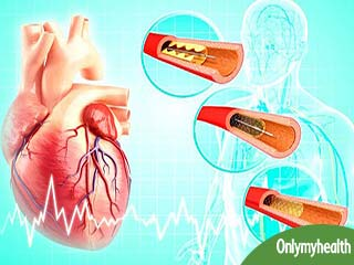 Expected Duration of Coronary Artery Disease
