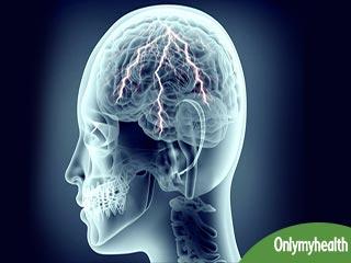 मानसिक बीमारी है पार्शियल सीजर, जानें कारण लक्षण और उपचार
