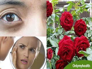 घर में उगाएं गुलाब का पौधा, कभी नहीं होंगे ये 5 चर्मरोग