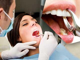 बहुत सावधानी से कराएं इन 5 तरह के दांतों का इलाज