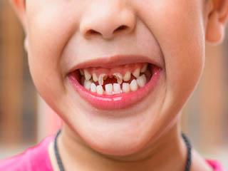 बच्चों के दांतों में लगा है कीड़ा? इस आसान उपाय से पाएं छुटकारा